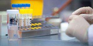 Россия преодолела планку в 1 млн тестов по выявлению коронавируса